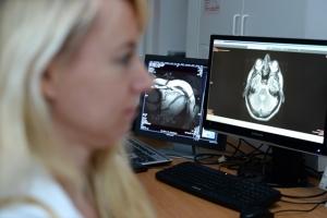 Eine Mitarbeiterin der NAKO-Gesundheitsstudie prüft MRT-Bilder am Monitor © NAKO Gesundheitsstudie